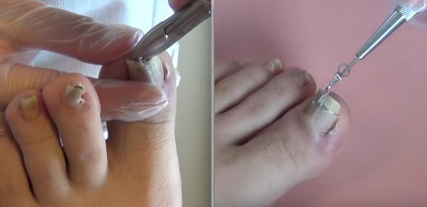 「他的指甲「嚴重」的圖片搜尋結果
